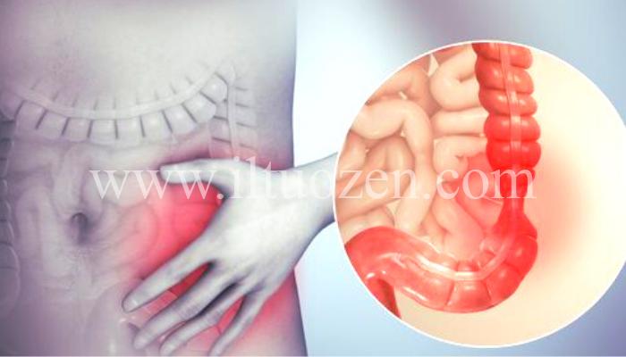 Sindrome del colon irritabile. Ecco qual è il vero rimedio: